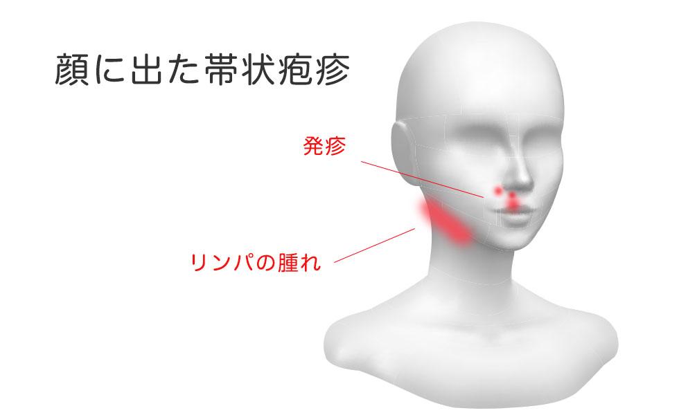 顔に出た帯状疱疹