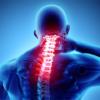 頚椎ヘルニアの治し方